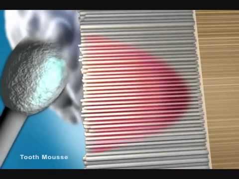 Описание: gc tooth mousse тус мусс гель ваниль. Gc tooth mousse гель тус-мусс для зубов. Это водорастворимый крем, содержащий recaldent™* срр-аср (казеин фосфопептид аморфный кальций фосфат). В среде полости рта срр-аср прочно связывается с био пленкой, зубным налетом,