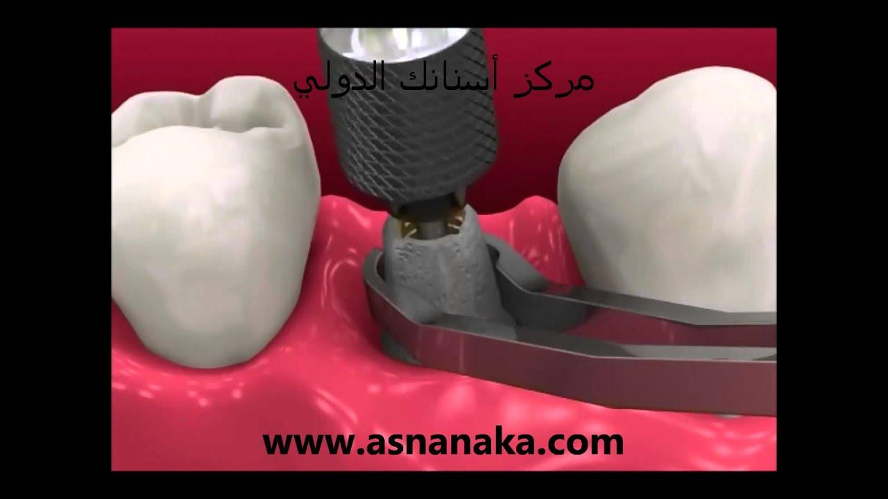أنواع زراعة الأسنان وكيفية تركيبها وكيفية صناعة تعويضاتها في المختبر Youtube