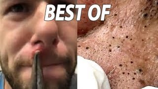 Best of Cysts, Blackheads, Comedones and Dermatology!