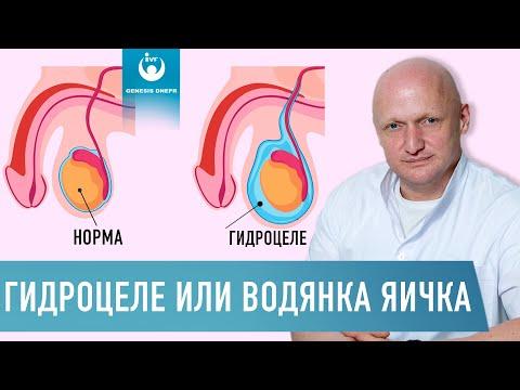 Гидроцеле. Водянка яичка.  Симптомы, последствия и лечение водянки яичка у мужчин | Хирург Щевцов