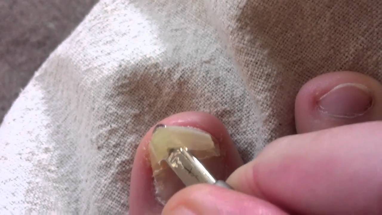 Me Removing My Infected Toenail Pt. 1/4 - YouTube