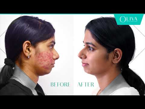How To Remove Pimples - Professional Treatments For Acne