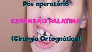 Pós Operatório Expansão Palatina - Cirurgia Ortognática | Bruna M. Silva