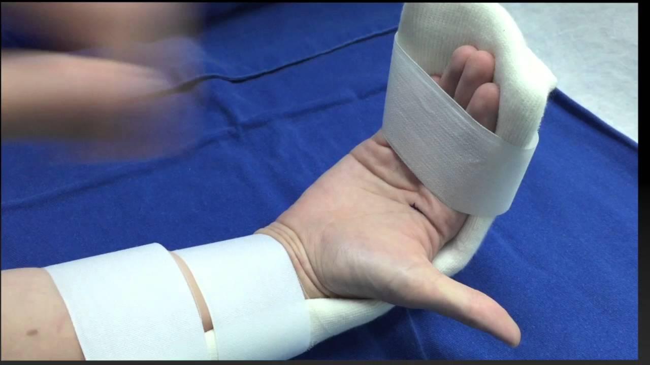 Rehabilitación de Lesiones de tendones flexores de los dedos - YouTube