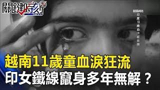 越南11歲童「血淚」狂流 印尼女鐵線竄出身體20多年無解?! 關鍵時刻 20180912-6 黃創夏   王瑞德
