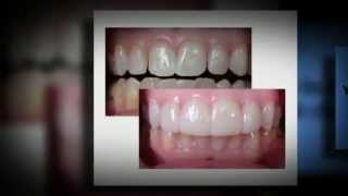 Top Cosmetic Dentists for Cheap Cosmetic Dentistry Thumbnail