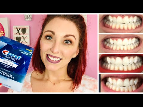 Crest 3D White One Hour Express Whitestrips/ CREST WHITENING BEFORE AND AFTER REVIEW