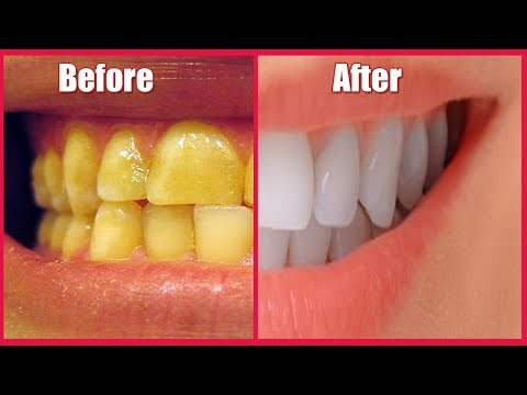 Whiten Yellow Teeth At Home In 1 Minute - Ayurved Ke Gharelu Nuskhe
