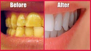 Whiten Yellow Teeth at Home in 1 Minute - Ayurved Ke Gharelu Nuskhe