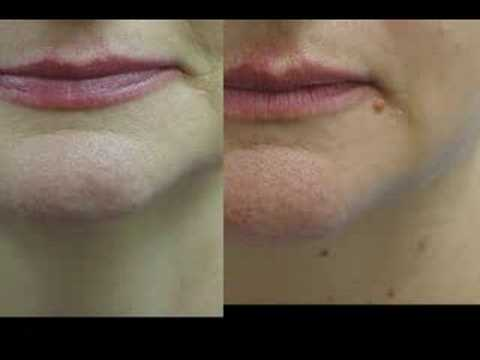 Erbium Laser Resurfacing Before And After Phots Youtube