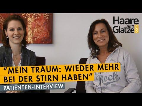 Haartransplantation Bei Einer Frau Interview Und Vorhernachher