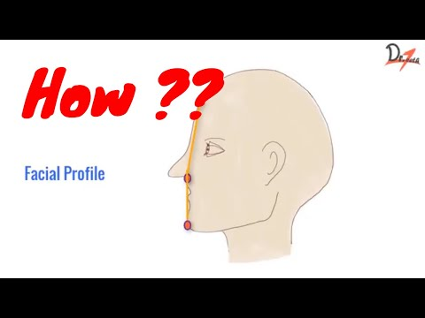 How To Check Facial Profile Of A Patient? | ORTHODONTICS |