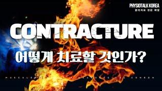 논문 리뷰   Contracture