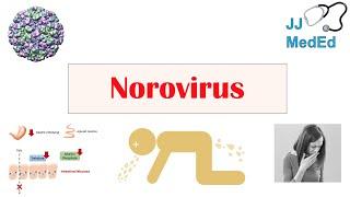 Norovirus (Norwalk Virus) | Transmission, Pathogenesis, Symptoms, Prevention