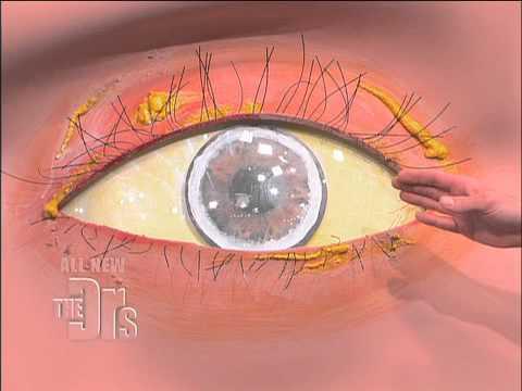 Cholesterol Deposits in the Eye (The Doctors)
