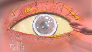 Cholesterol Deposits in the Eye (The Doctors)