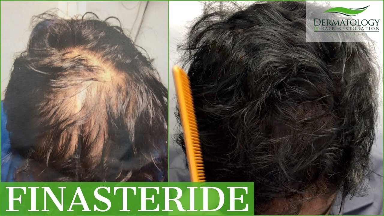 Topical Finasteride Incredible Results For Male Hair Loss Dr Ben Behnam Los Angeles Youtube
