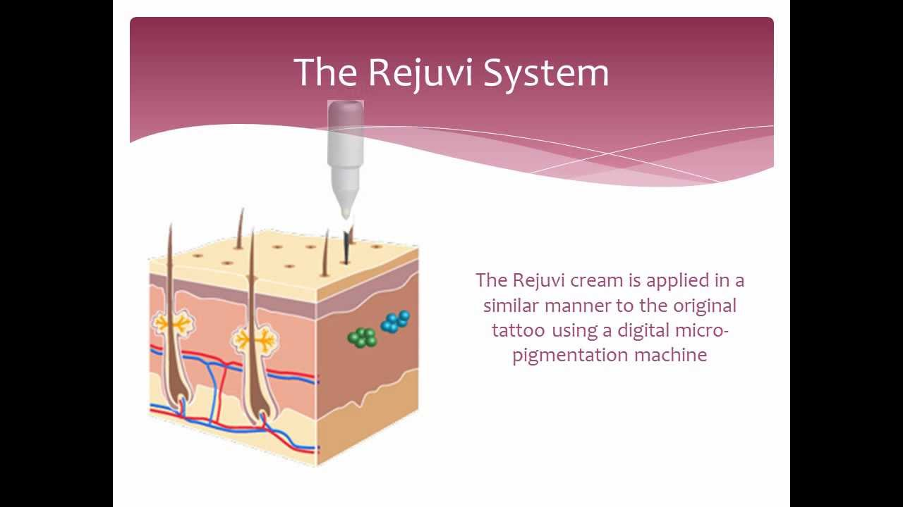 Tattoo Removal - Non laser - How it works - Rejuvi - YouTube
