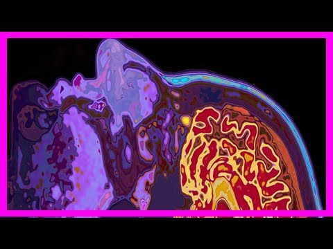 Breaking News | Newly discovered broken brain links could be why parkinson's causes hallucinations