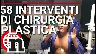 IL KEN UMANO, RODRIGO ALVES PRIMA E DOPO - Notizie.it