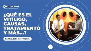 Que es Vitiligo, causas, tratamientos. Entrevista al Dr. Aparcana en el programa En Familia (2/2)