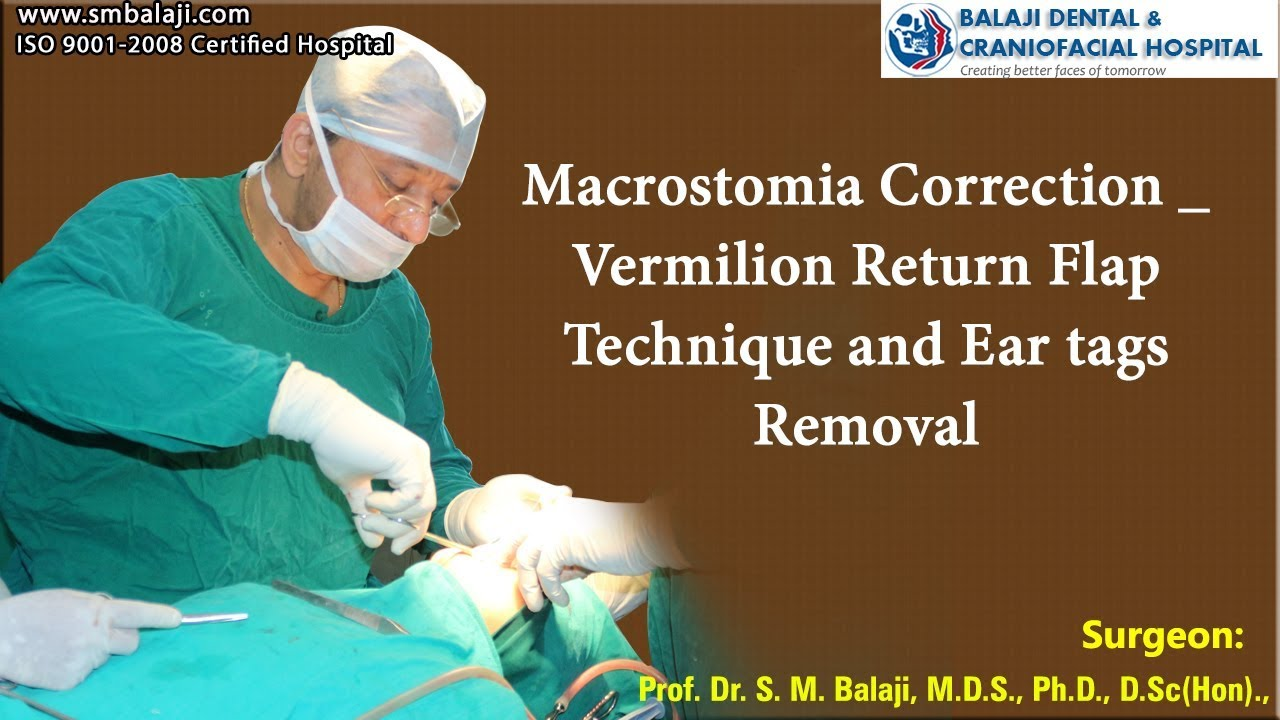 Macrostomia Correction- Vermilion Return Flap Technique and Ear tags Removal