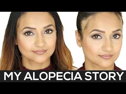 My Alopecia Story | Alopecia Areata