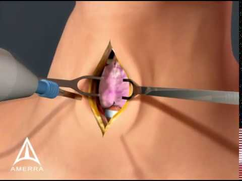 Tracheotomy - 3D Medical Animation
