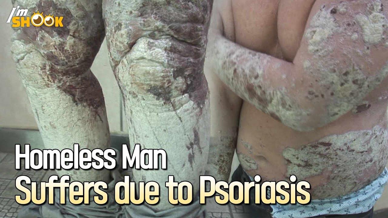 psoriasis videos youtube