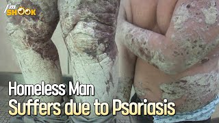 Homeless Man Has Psoriasis: He Can't Shower/lie Down Due To His Skin Flakes