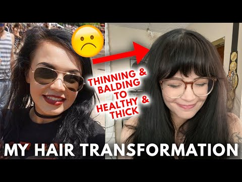 THIN TO THICK HAIR TRANSFORMATION! Thick & Healthy Hair Tips