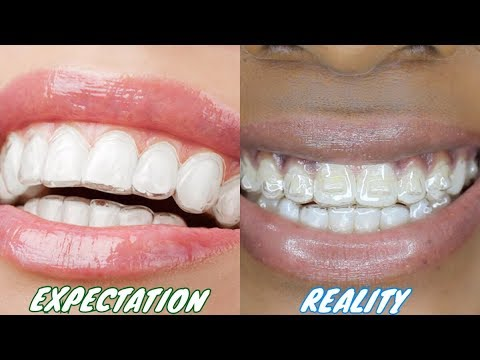 INVISALIGN EXPECTATION Vs. REALITY
