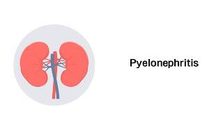 Nierenbeckenentzündung - Pyelonephritis (Erkrankungen der Niere)