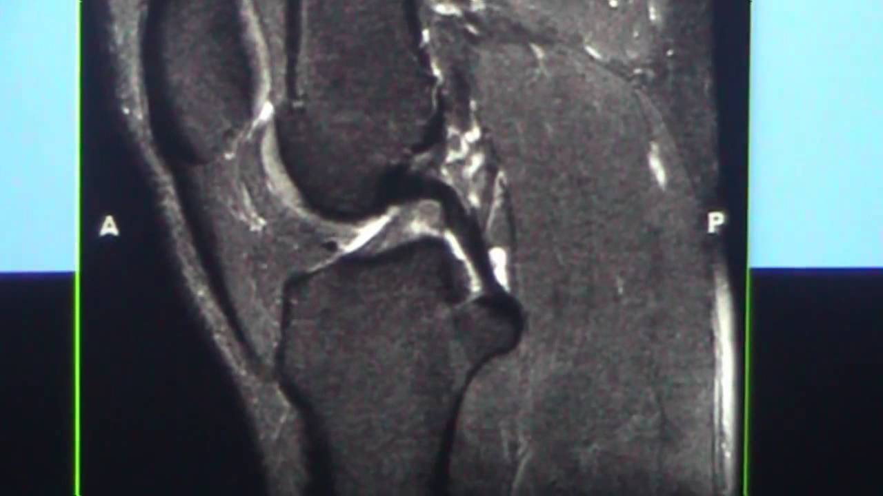 Knee MRI Part 1 Normal Anatomy for Orthopaedic and Radiology ...