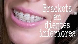 VLOG: BRACKETS en dientes inferiores. ¡¡¡DUELE!!!