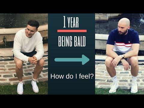 balding-progression---hair-loss-after-1-year