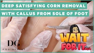Deep satisfying corn removal with callus from sole of foot