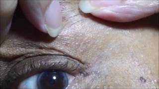 Skin Tag Removal with Apple Cider Vinegar 2017