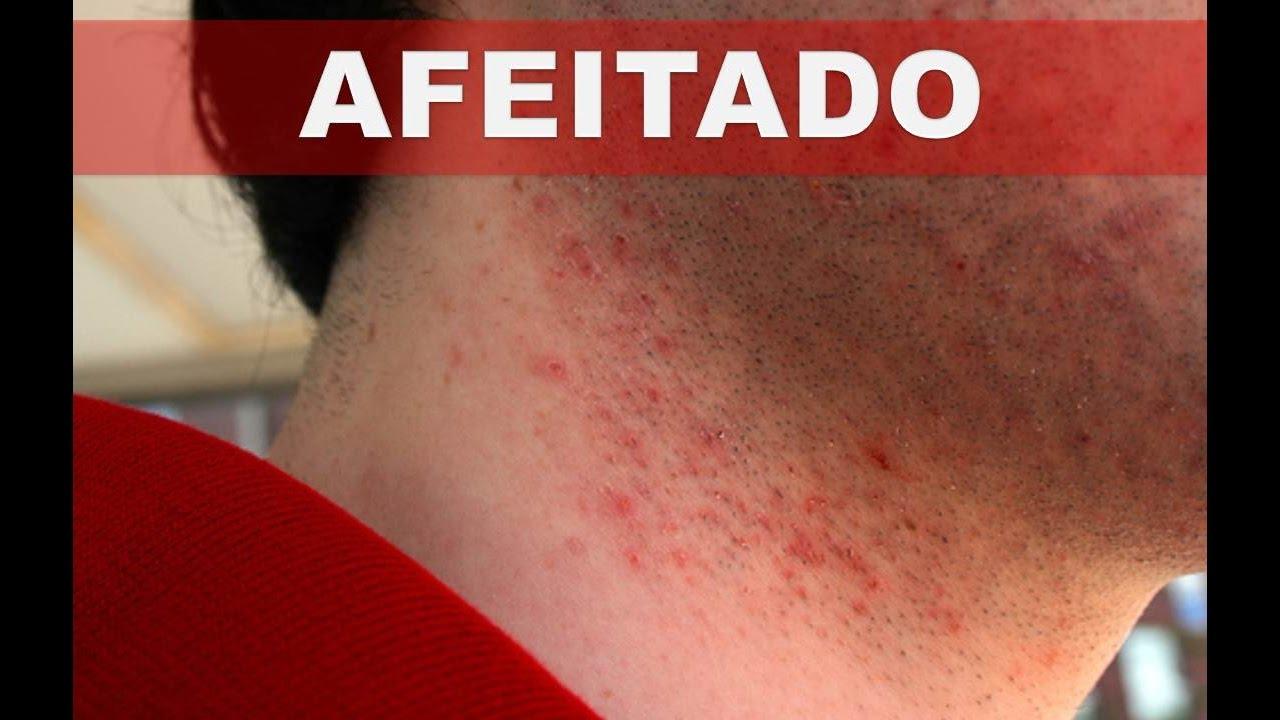 Como deshacerse o disminuir la irritaci n en la piel al - Rodillo para lacar ...