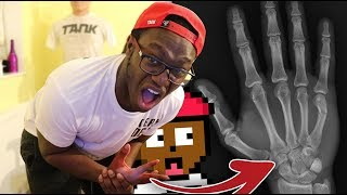 DON'T PLAY THIS! (I BROKE MY HAND)