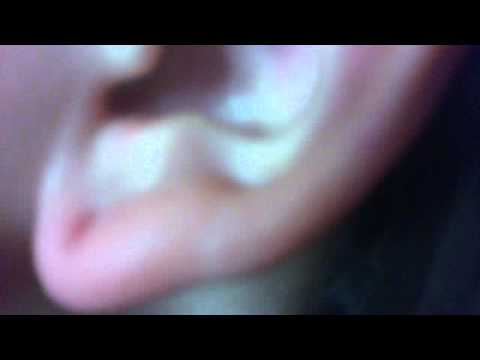 EARING BACK STUCK IN EAR LOBE! =( HELP ME - YouTube