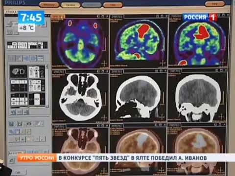 Тайны мозга: на что способна сила мысли