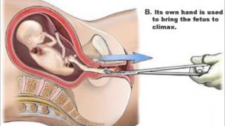 Lycopolis - Fetal Alcohol Syndrome (I Want Out)