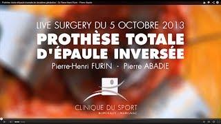 Prothèse totale d'épaule inversée de deuxième génération - Dr Pierre-Henri Flurin - Pierre Abadie