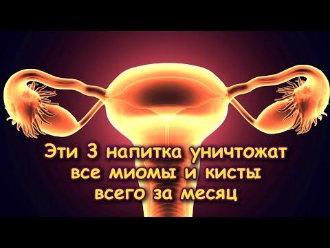 Эти 3 НАПИТКА помогут в лечении М И О М Ы и К И С Т Ы