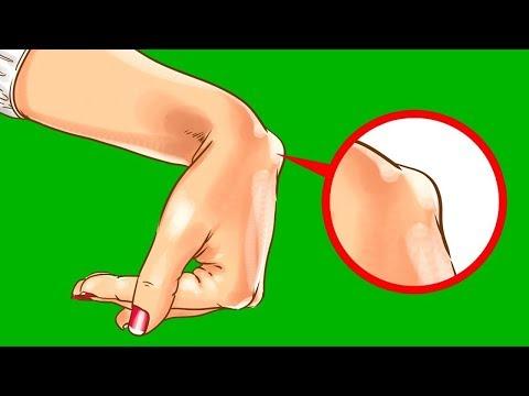 Болит шишка на кисти руки