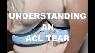 Understanding an ACL Tear