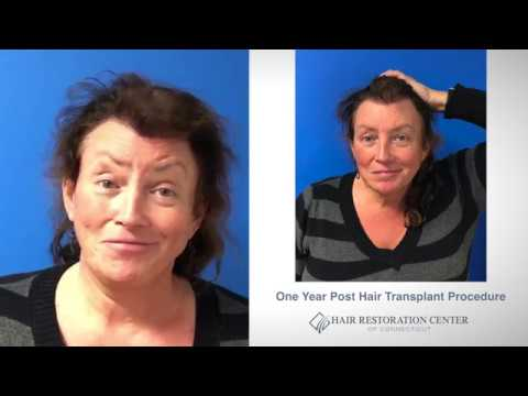 Hair Transplant Transgender Patient - 1 Year Case Study