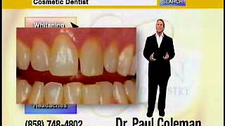 San Diego CA Cosmetic Dentist Promotes Offered Treatments- Teeth Whitening Thumbnail
