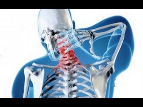 Чем опасен остеохондроз шейного и поясничного отделов